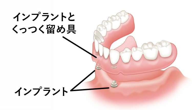 インプラントとくっつく固定式の入れ歯